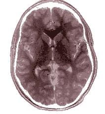 Exame de ressonância magnética de um cérebro humano. Imagem: Wikimedia Commons.