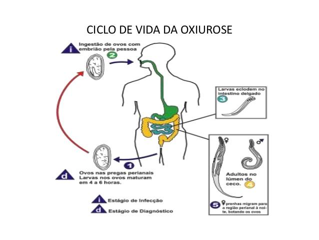 parasito oxiuros sintomas